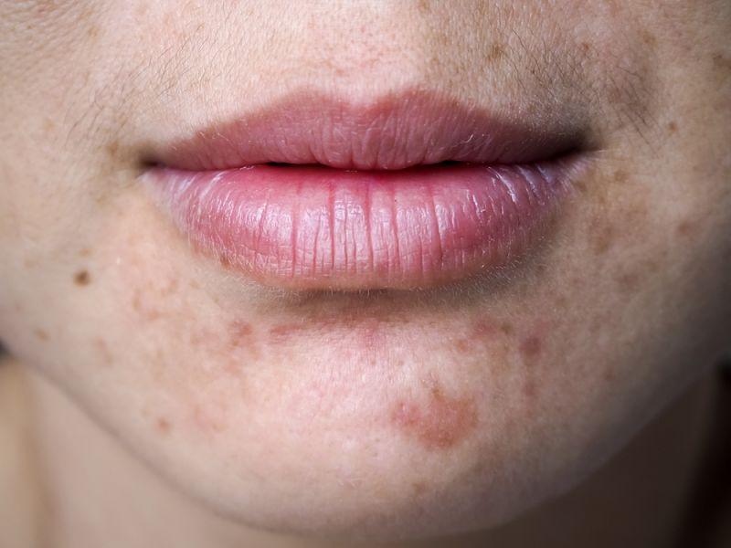 Chica joven con marcas de acné en su cara