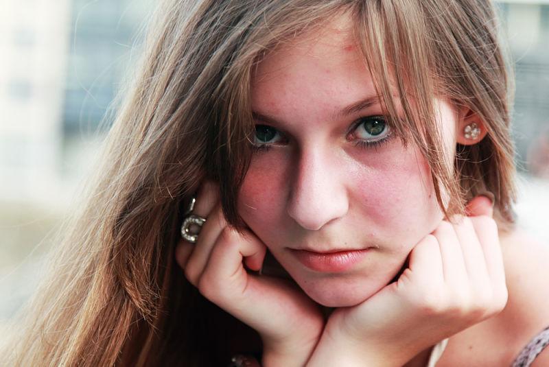 chica joven que presenta marcas del acné en su rostro