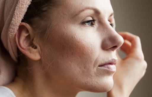 3 Tónicos naturales y efectivos para cerrar los poros del rostro