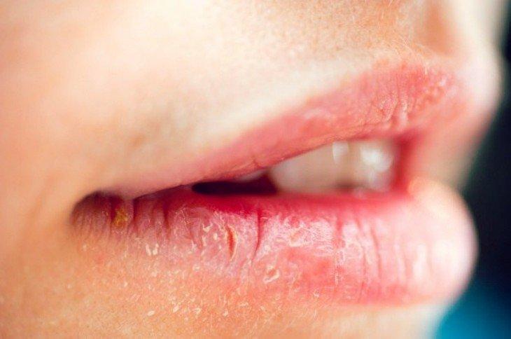 Una chica con los labios secos