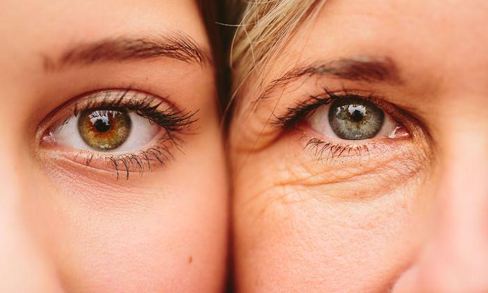 dos mujeres mostrando piel de los ojos, joven y envejecida