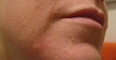 Aceites naturales que te ayudarán a evitar la resequedad de la piel