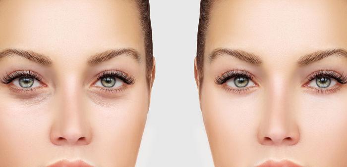 mujer con ojeras y mujer sin ojeras