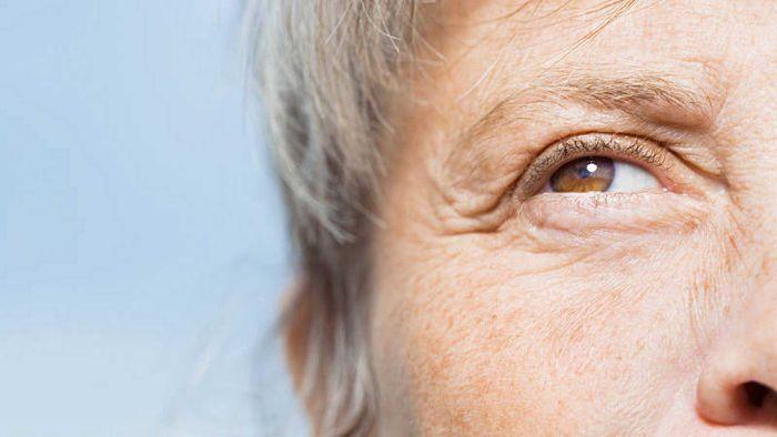 Mujer mayor con envejecimiento de la piel