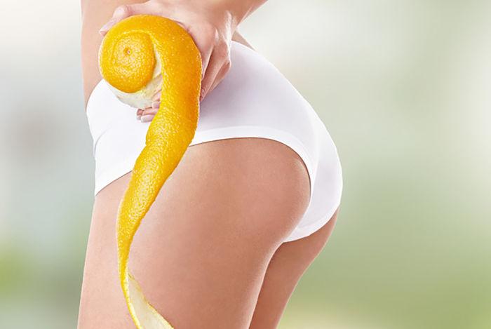 Mujer con piernas saludables y piel joven, agarrando una cáscara de naranja al ser un buen alimento para eliminar la celulitis