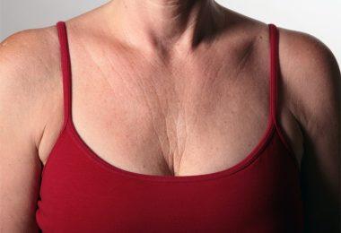 Cómo prevenir las arrugas en el escote y el pecho